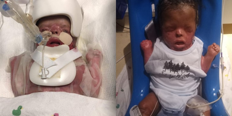 Ja'bari Gray, a baby born without skin (before and now).