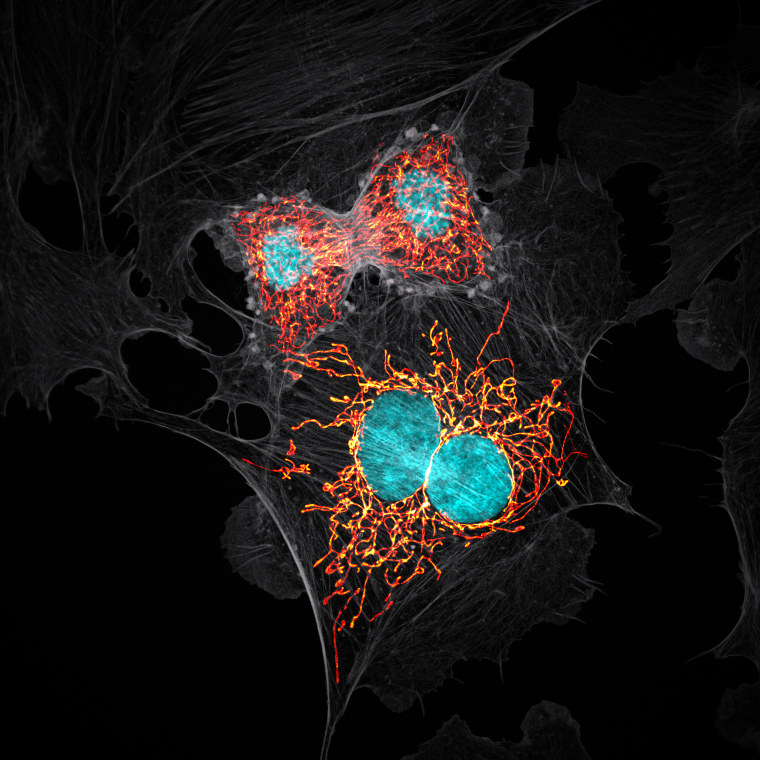 Image: BPAE cells in telophase stage of mitosis
