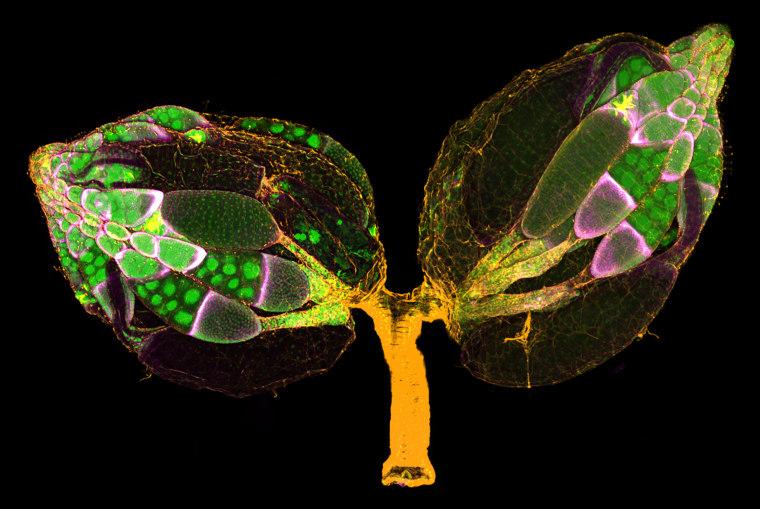 Image: Adult Drosophila Ovaries