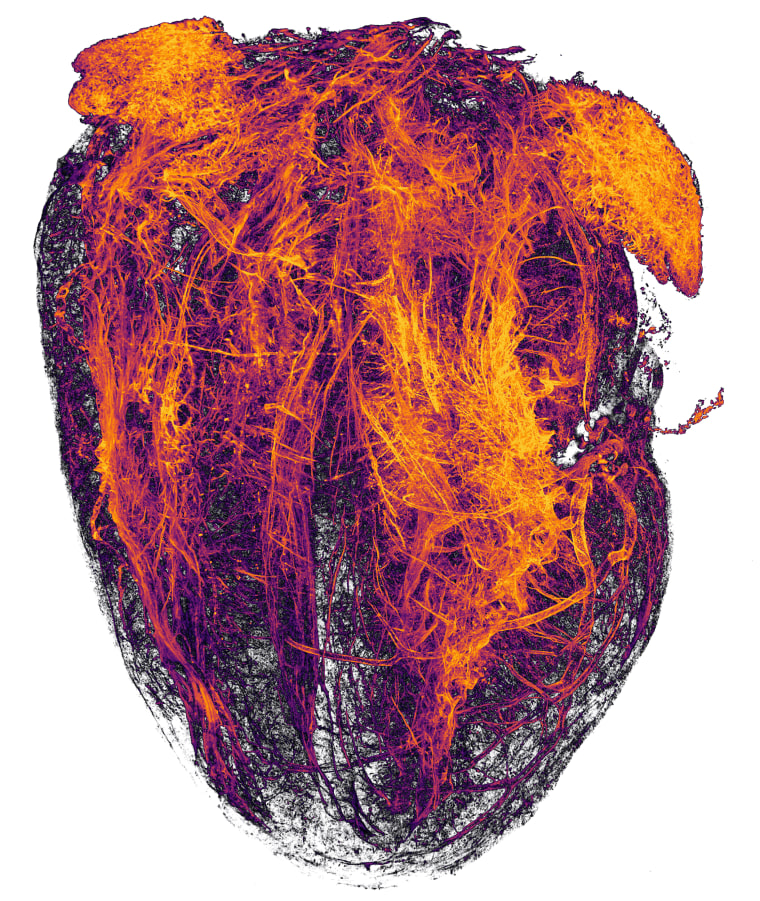Image; Blood vessels of a murine (mouse) heart following myocardial infarction (heart attack)