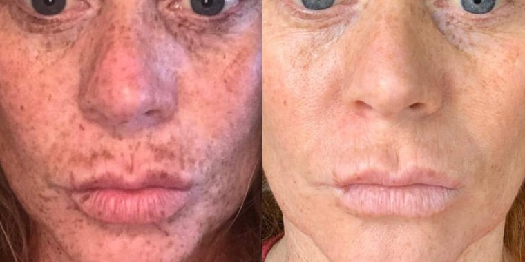 The before and after photos are impressive!