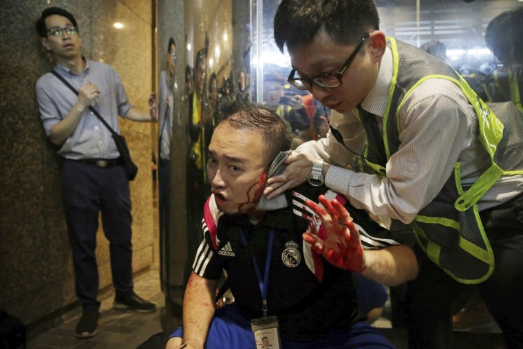 District councilor Andrew Chiu receives medical treatment in Hong Kong on Sunday after a knife-wielding man bit off part of his the ear.