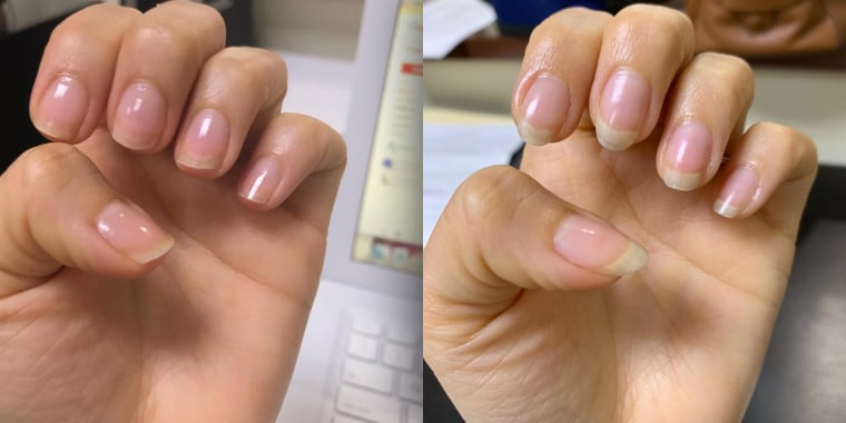 This active mom cleans, cooks and washes her hands multiple times a day. She claimed that the cream has changed her nails completely.