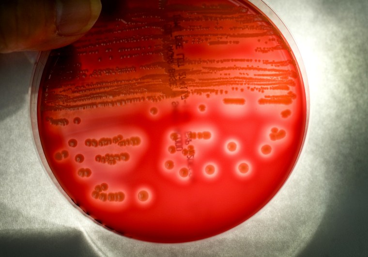Image: MRSA colonies grow in a blood agar plate at a lab. The white areas around the colonies indicate where MRSA infection is attacking and destroying the red blood cells.
