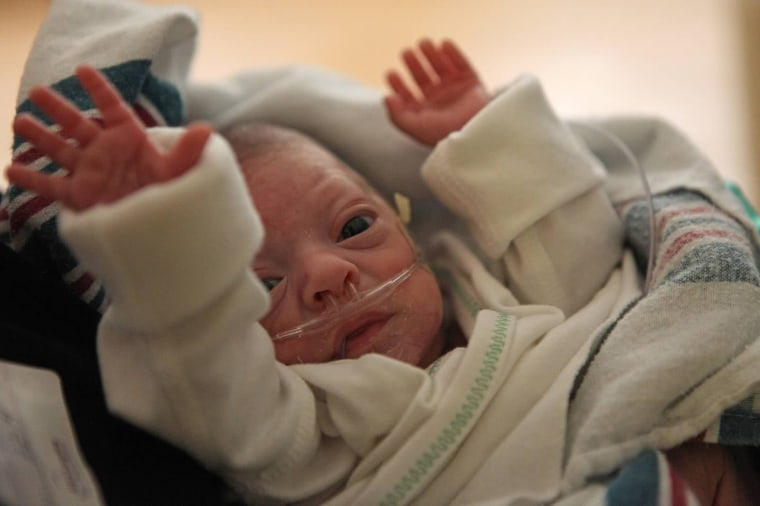 A preterm baby in a NICU. Preterm babies are far more likely to die, and the US has one of the highest infant mortality rates in the developed world.