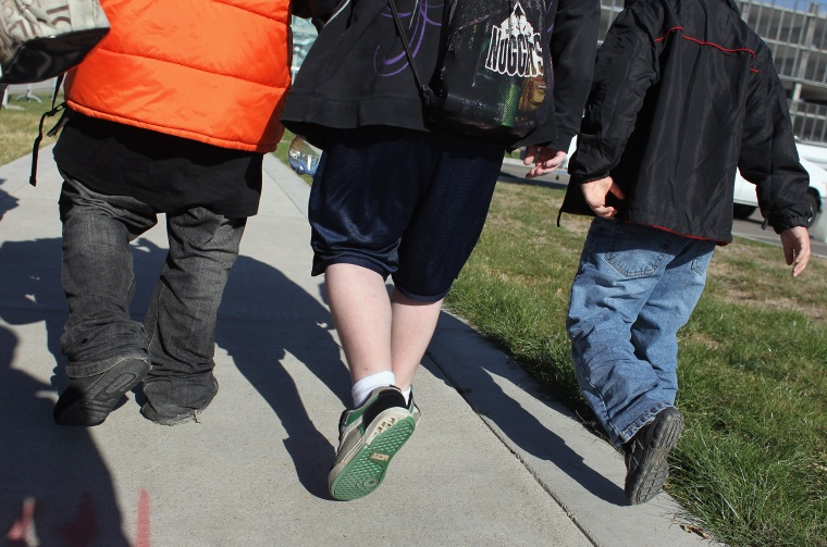 Brain differences may be tied to obesity, study says