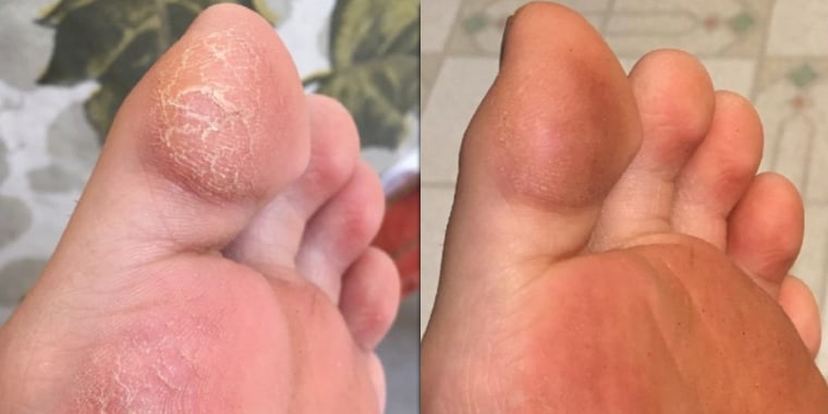 Amazon Customers Love This Foot Cream For Dry Cracked Skin