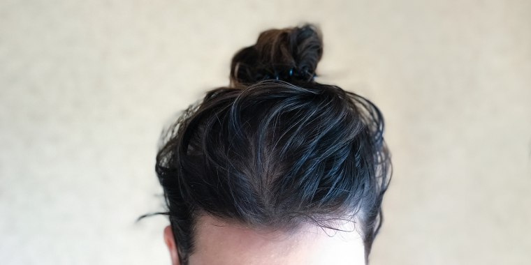 Oil and dirt buildup in the hair