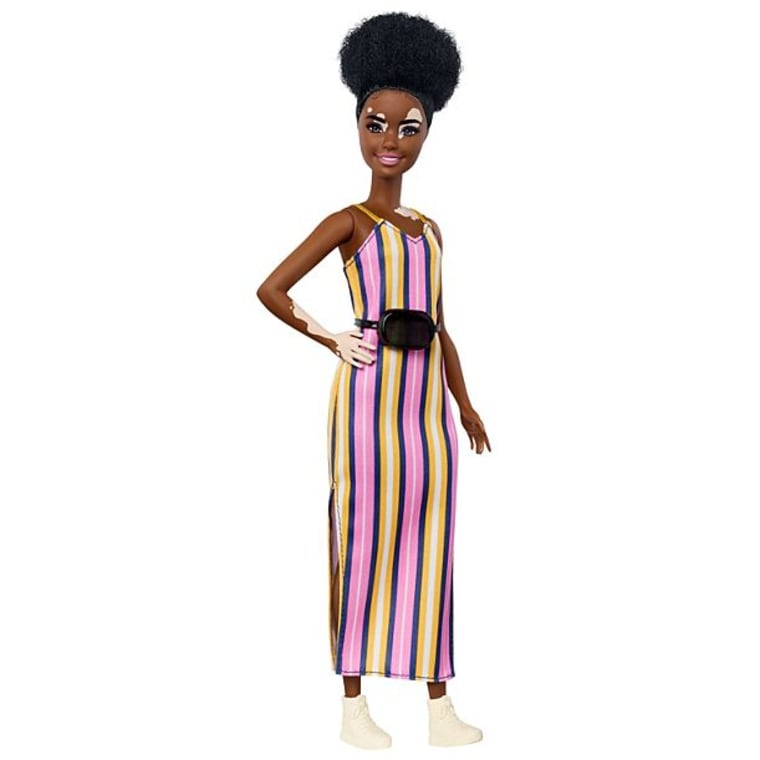 Mattel says they worked with a dermatologist to ensure their Fashionista with vitiligo was accurately portrayed.