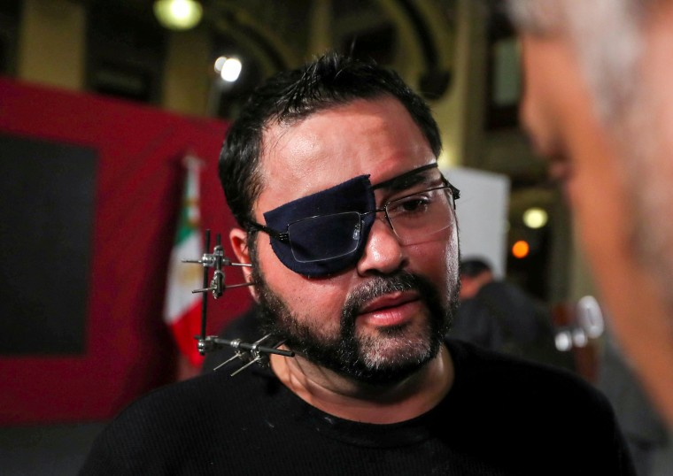 Image: Paul Velazquez, a video blogger wearing an eye patch and with metal surgical pins in his face, listens to Mexican President Andres Manuel Lopez Obrador at a news conference in Mexico City on Feb. 5, 2020.
