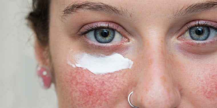 Rosacea can often result in redness, flushing, pustules and dilated blood vessels.