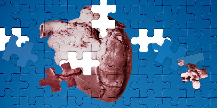 Image: Organ Donor's Plea