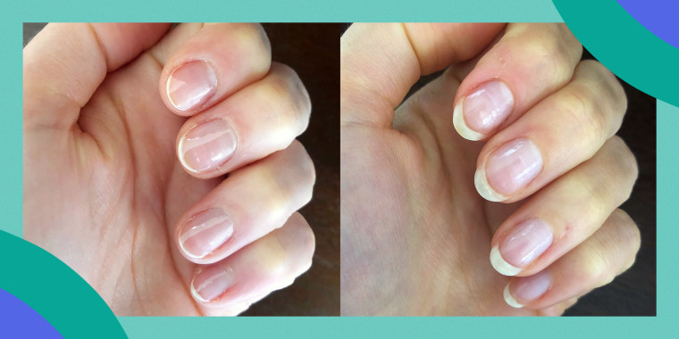 The NailTek Nail Recovery Kit includes a ridge filler, a strengthener and a nourishing cuticle oil.