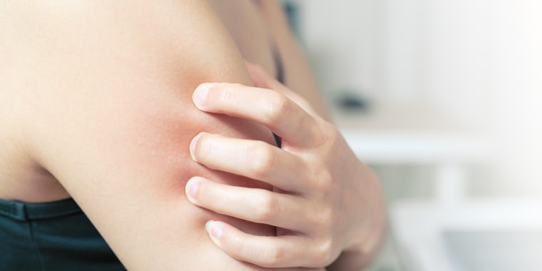 Summer skin rashes from poison ivy, the sun and the heat — and the most serious rash that accompanies Lyme disease — can be more prevalent when we expose more of our skin.