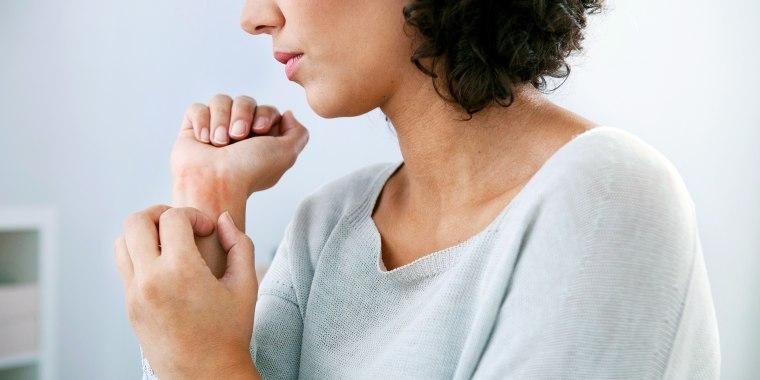 Woman itching eczema rash on wrist