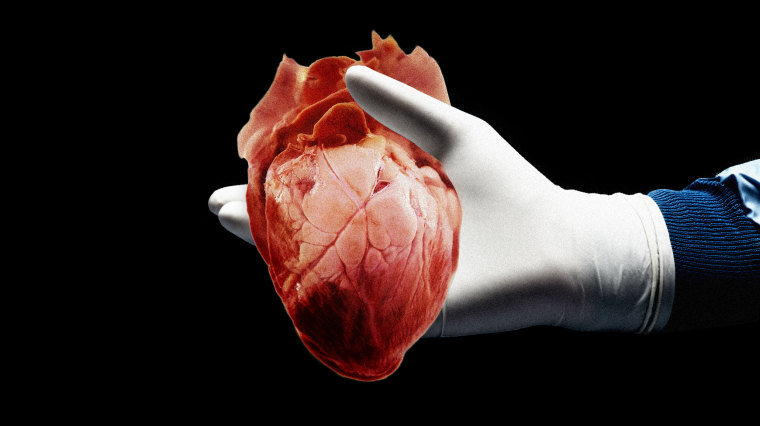 Image: A gloved hand holds a human heart.