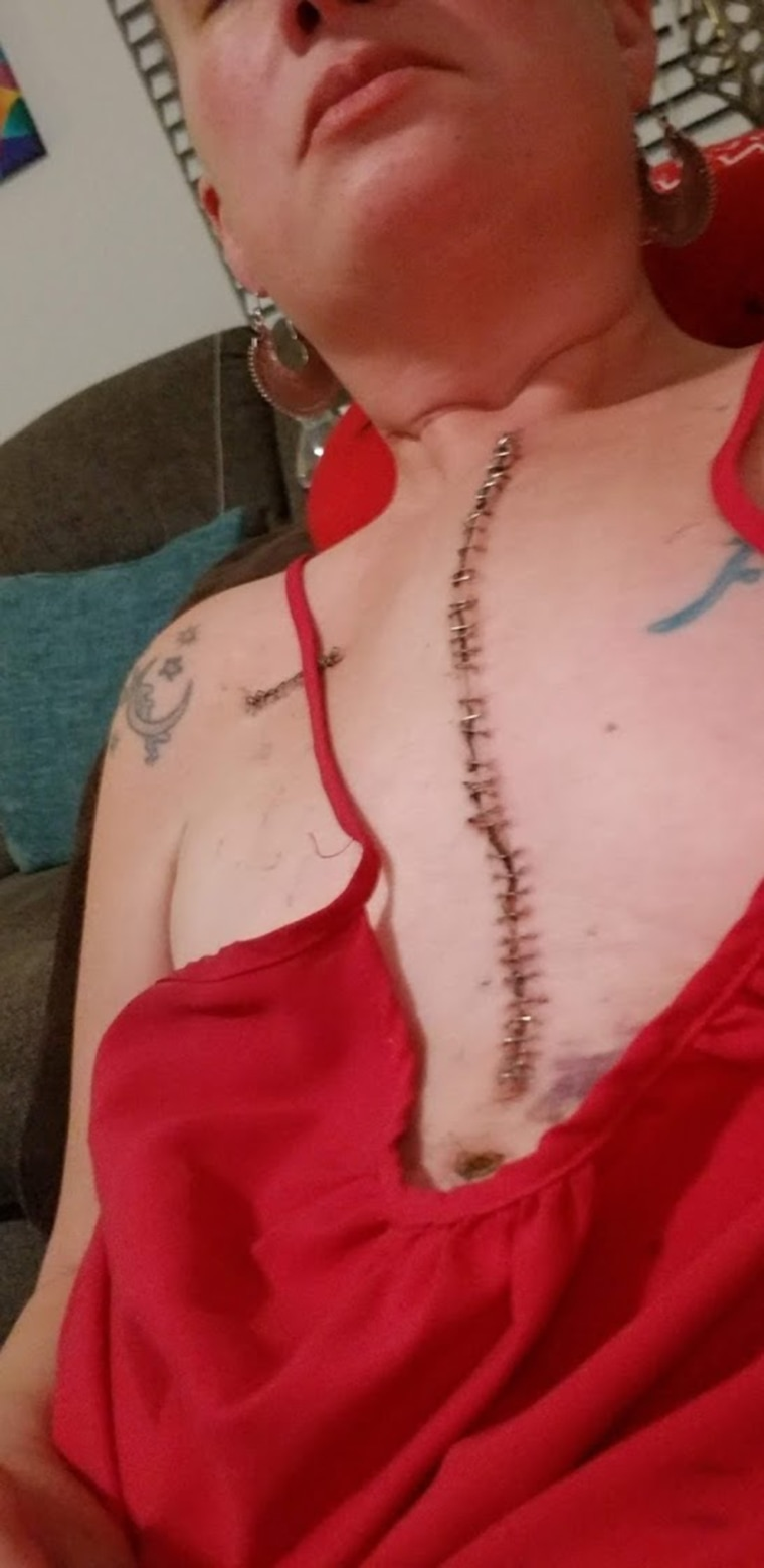 Having quadruple bypass surgery in her 30s made Kara DuBois really appreciate life and try to fulfill as many items on her bucket list as possible.