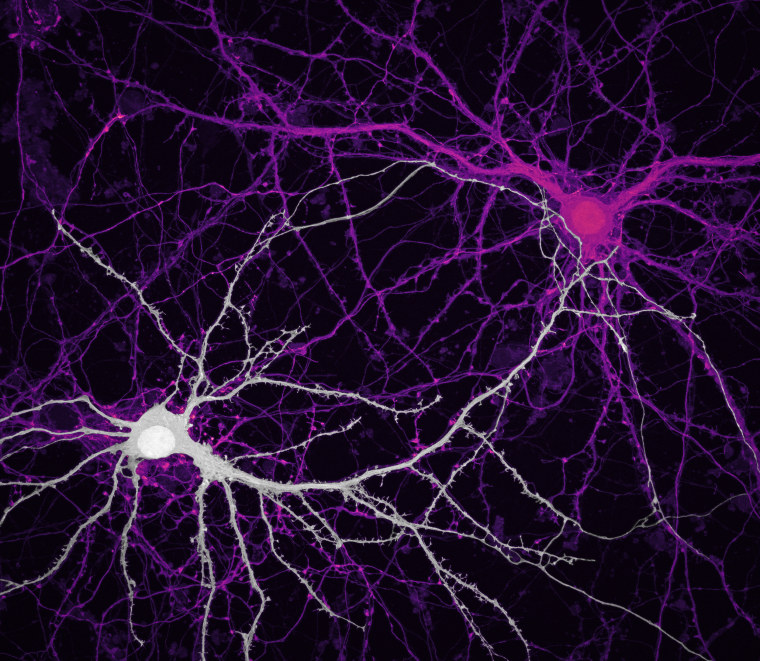 Connections between hippocampal neurons.