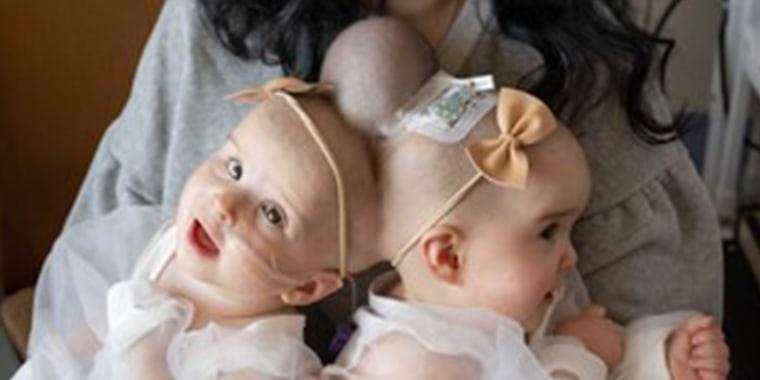 Twins Abigail and Micaela Bachinskiy, 9 months, were born connected at the head back in December 2019.
