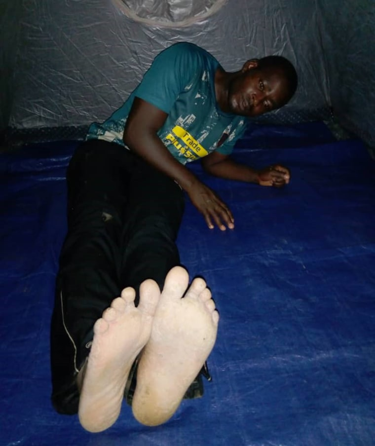 Image; Justice Bantar after he was beaten on the bottom of the feet in Cameroon.