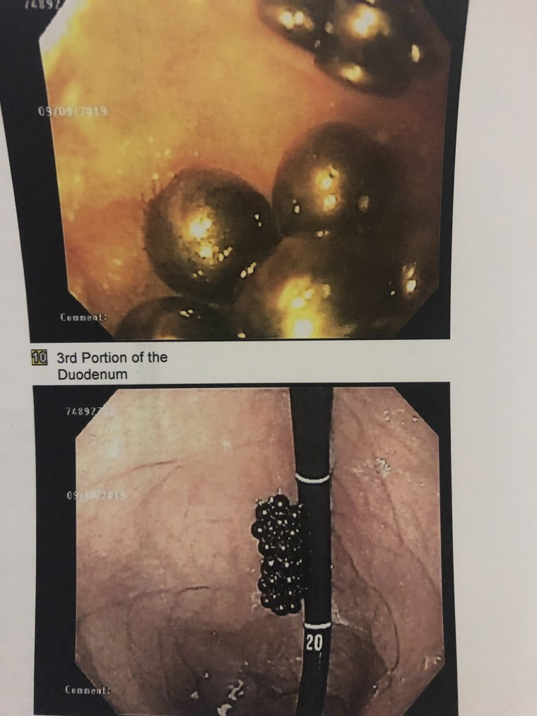 For one scary moment, doctors couldn't see the magnets in Peyton's stomach and thought they had slipped back into his small intestine. They pulled the camera back and realized they were stuck to the scope but still in the stomach.