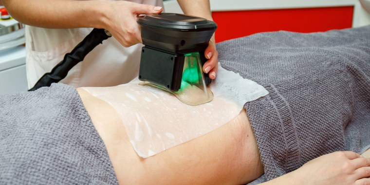 Beauty therapist applying cryolipolysis treatment. Non-surgical fat reduction