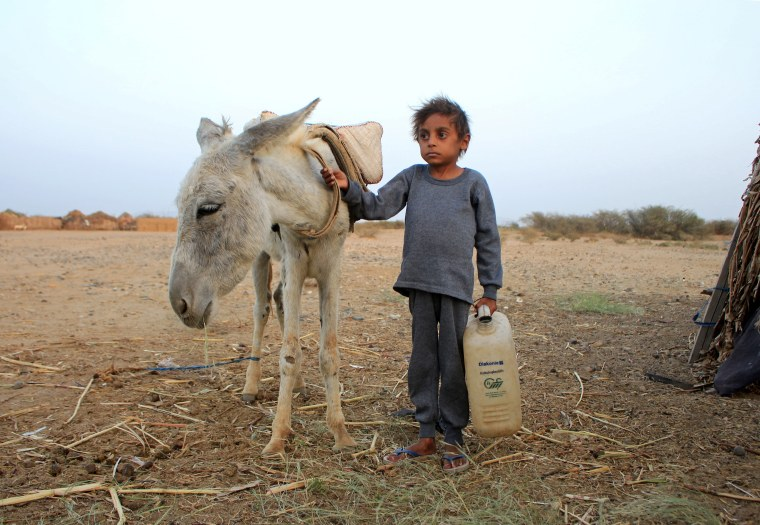 Image: Yemeni boy fights malnutrition as hunger stalks nation's children