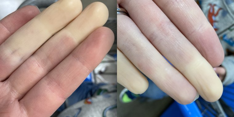 """This is what Rachel Smith's hands looked like during a trip to the grocery store. """"My body is hyper-sensitive to cold,"""" she said."""