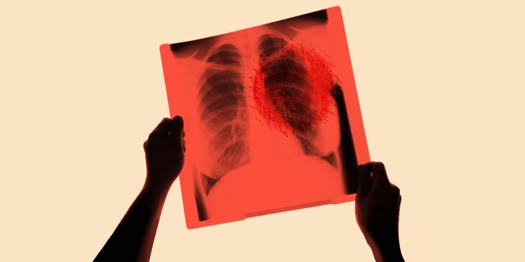 Sometimes, lung cancer strikes people with no known risk factors for the disease.