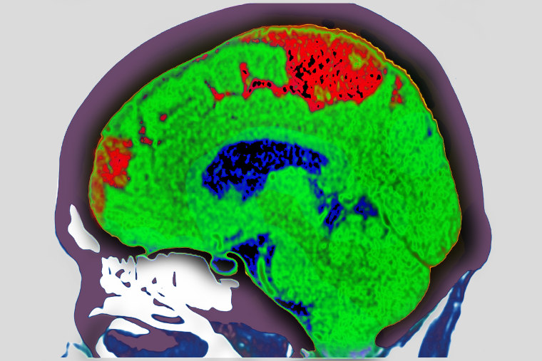 Cerebrovascular accident, commonly known as a stroke.