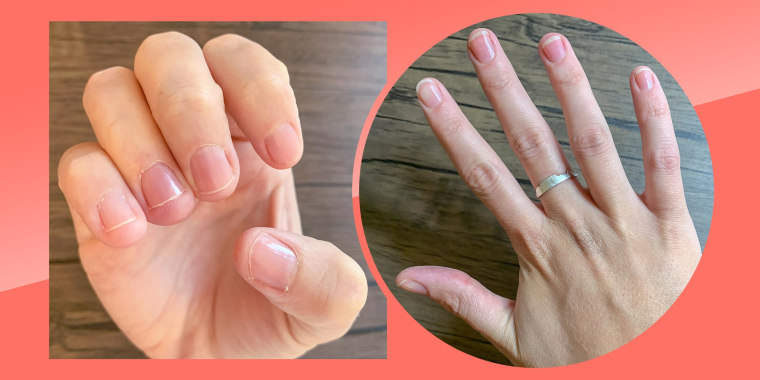 Before and after illustration of Emma Stessmans hand after using the ella+mila Nail Care