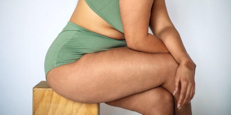 Up to 90% of adult women have cellulite, typically on the abdomen, buttocks and thighs. It's rare in men.