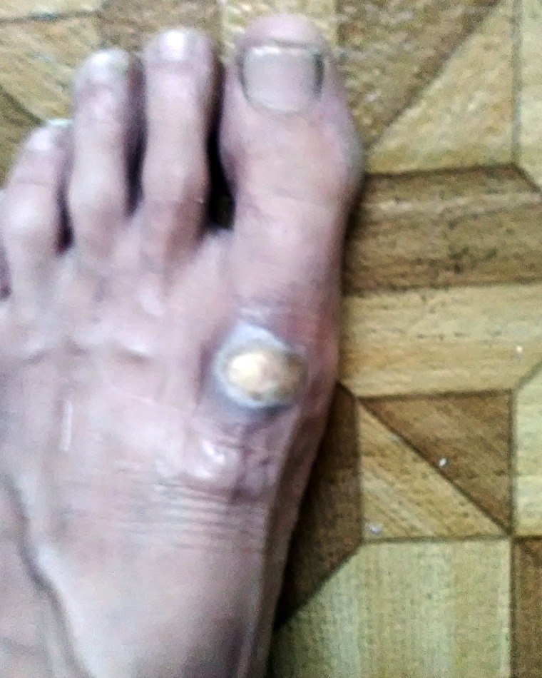 Image: Chemical burn on Taylor Travis' foot