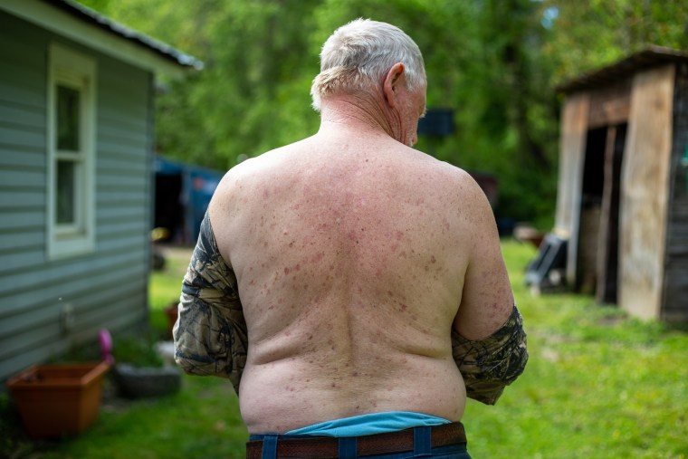 All the water's bad': In McDowell County, you have to get creative to find safe drinking water 210610-west-virginia-water-rash-jm-1523