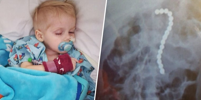 Two year old Konin Arrington was hospitalized after swallowing 16 magnetic balls in Orlando, Fla.