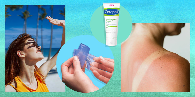 Woman covers her face from the sun with her hand on the beach, Close-up of a sunburn marks on a woman's back, a woman holding a sunburn relief patch and lotion. Sunburns 101: How to treat sunburns with over-the-counter products like moisturizer, aloe vera
