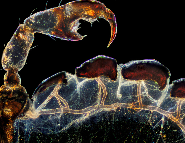 Frank Reiser's photograph of a louse's real leg, claw and respiratory trachea took third place.