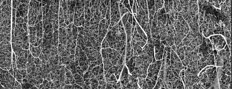 The vasculature of an adult mouse brain.