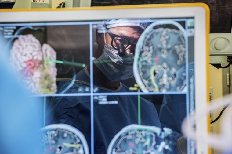 Neurosurgeon Dr. Edward Chang  performs surgery at University of California San Francisco on Jan. 23, 2017.