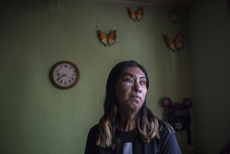 Image: Esmeralda Millan survived an acid attack by her ex-partner three years ago when she was 23.