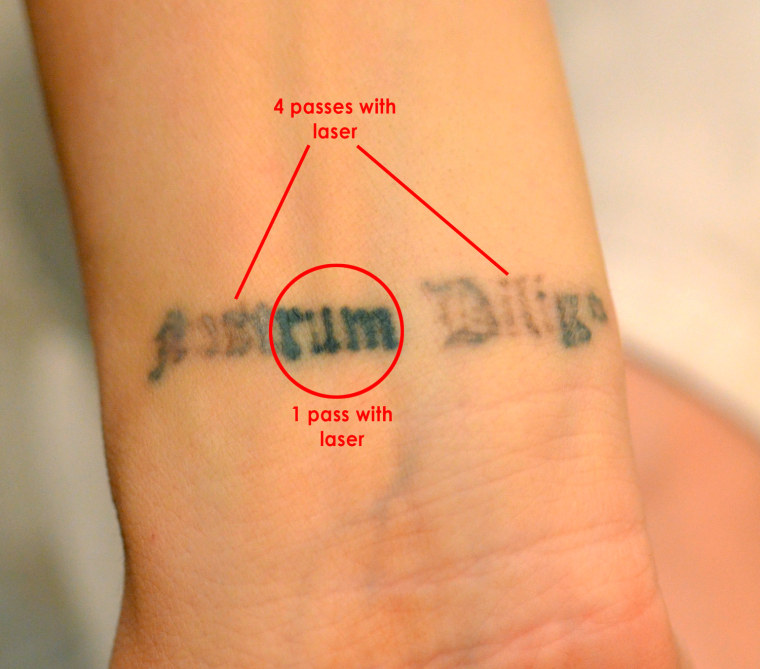 Tattoo remorse? New techique offers quick removal