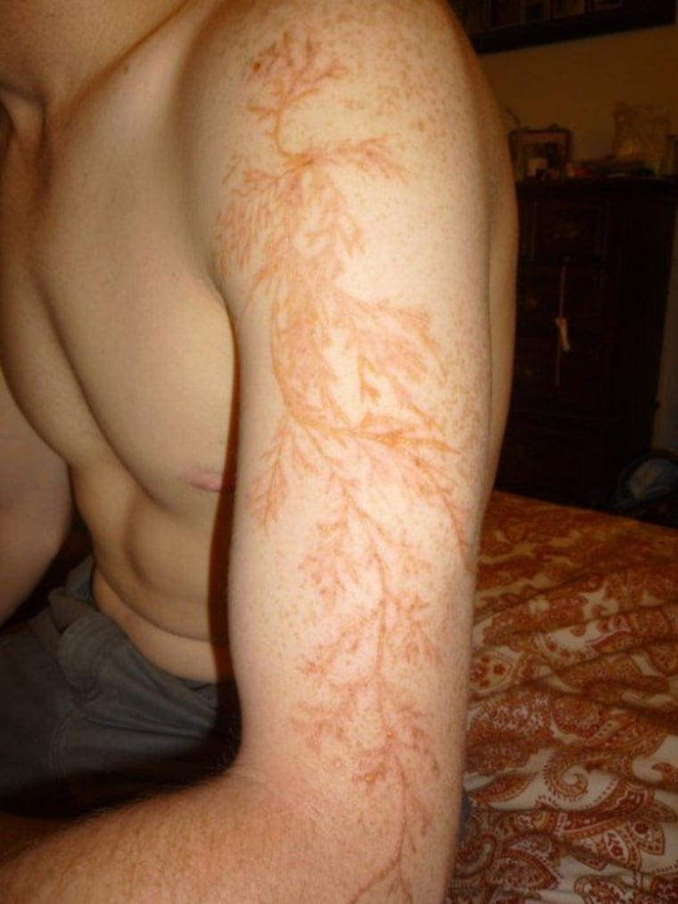 A strike of lightning left Winston Kemp, a 24-year-old electrician, with Lichtenberg figures, a skin discoloration.