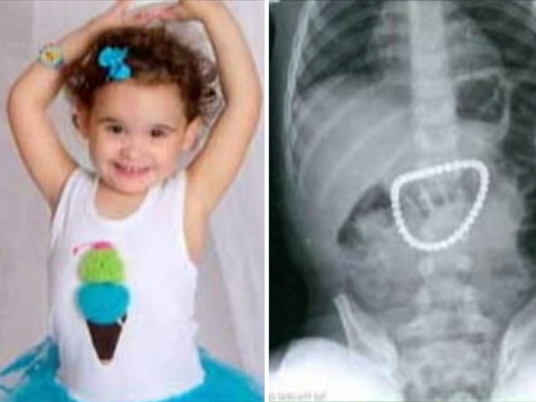 When doctors took an X-ray of Payton Bushnell, 3, they found 37 magnets clustered in her stomach.