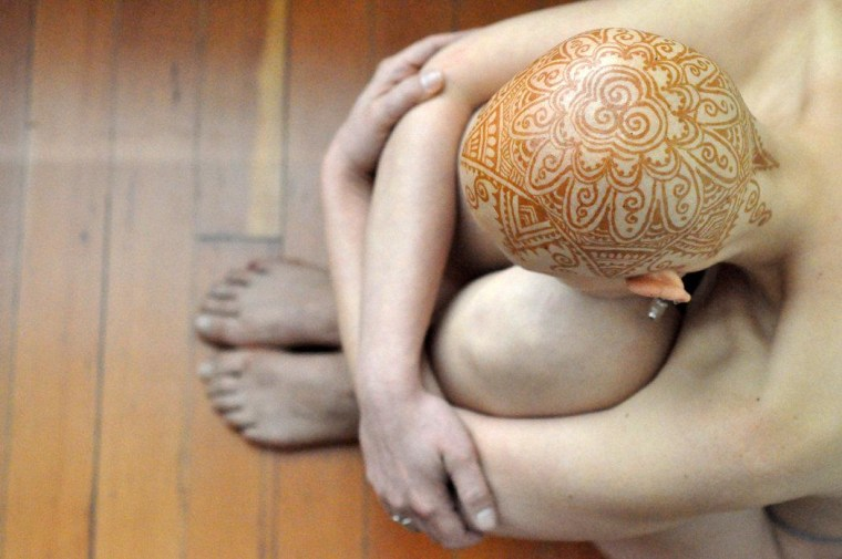 Tara Schubert has Stage III triple negative breast cancer. She modeled for Henna Heals, a studio in Toronto where artists paint henna designs on the heads of people who have lost their hair, usually due to chemotherapy or alopecia.