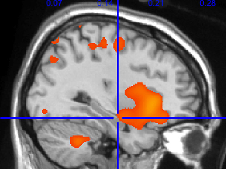 A profile MRI of the brain with color shaded areas corresponding to areas of increased gray matter volume in active people. The blue crosshairs point to increased volume in the hippocampus with more calories burned per week. The hippocampus is the key memory and learning center of the brain.