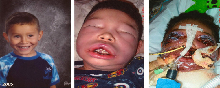 From left, Jake Finkbonner in kindergarten in 2005, Jake one day after he contracted flesh-eating bacteria, and Jake on his sixth birthday just eight days after the accident.