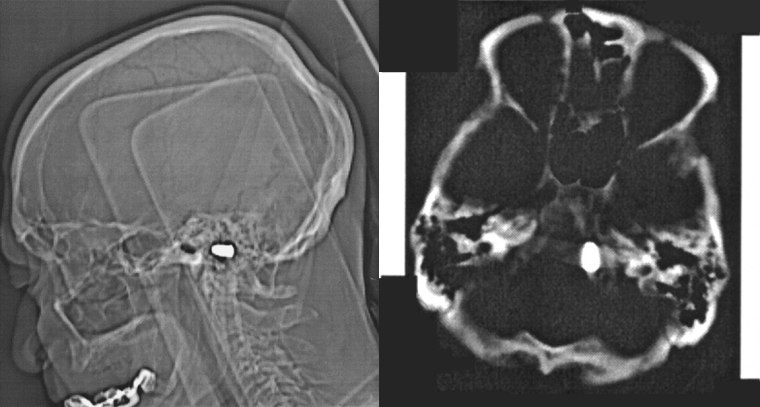 This image shows the bullet that was lodged in an 85-year-old man's head -- specifically, his foraman magnum -- for more than 80 years.