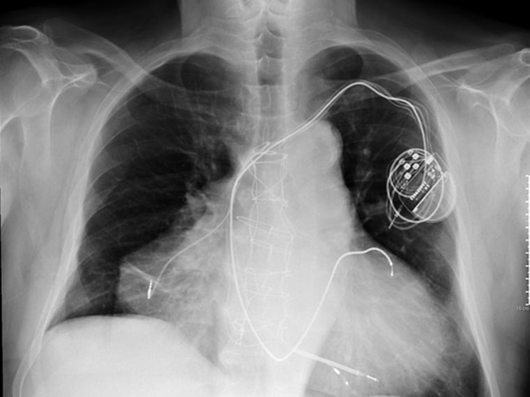 The chest x-ray of an Italian man who has two hearts.
