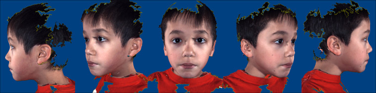 Images like this helped researchers determine differences in the faces of children with autism, when compared to those without the developmental disorder.