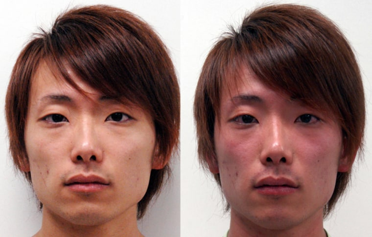 A condition called 'Asian flush' happens to certain people of Asian descent after they have consumed alcohol. The red blush, shown on right, is the result of a deficient gene.